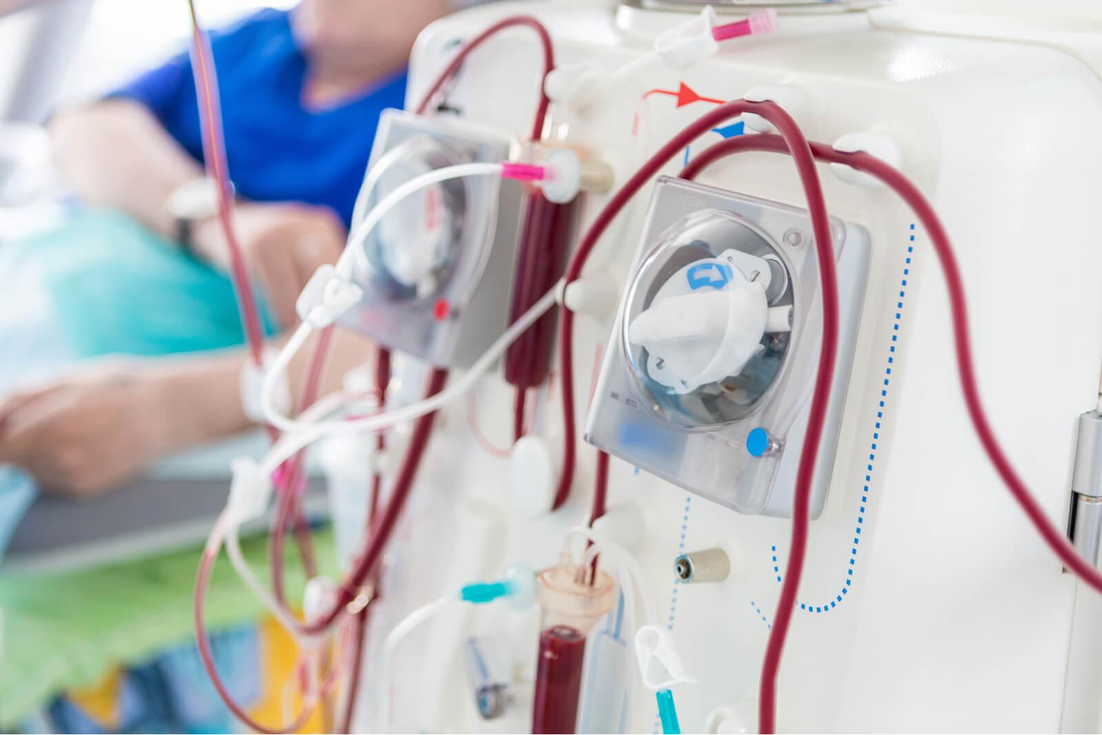 maszyna do dializ